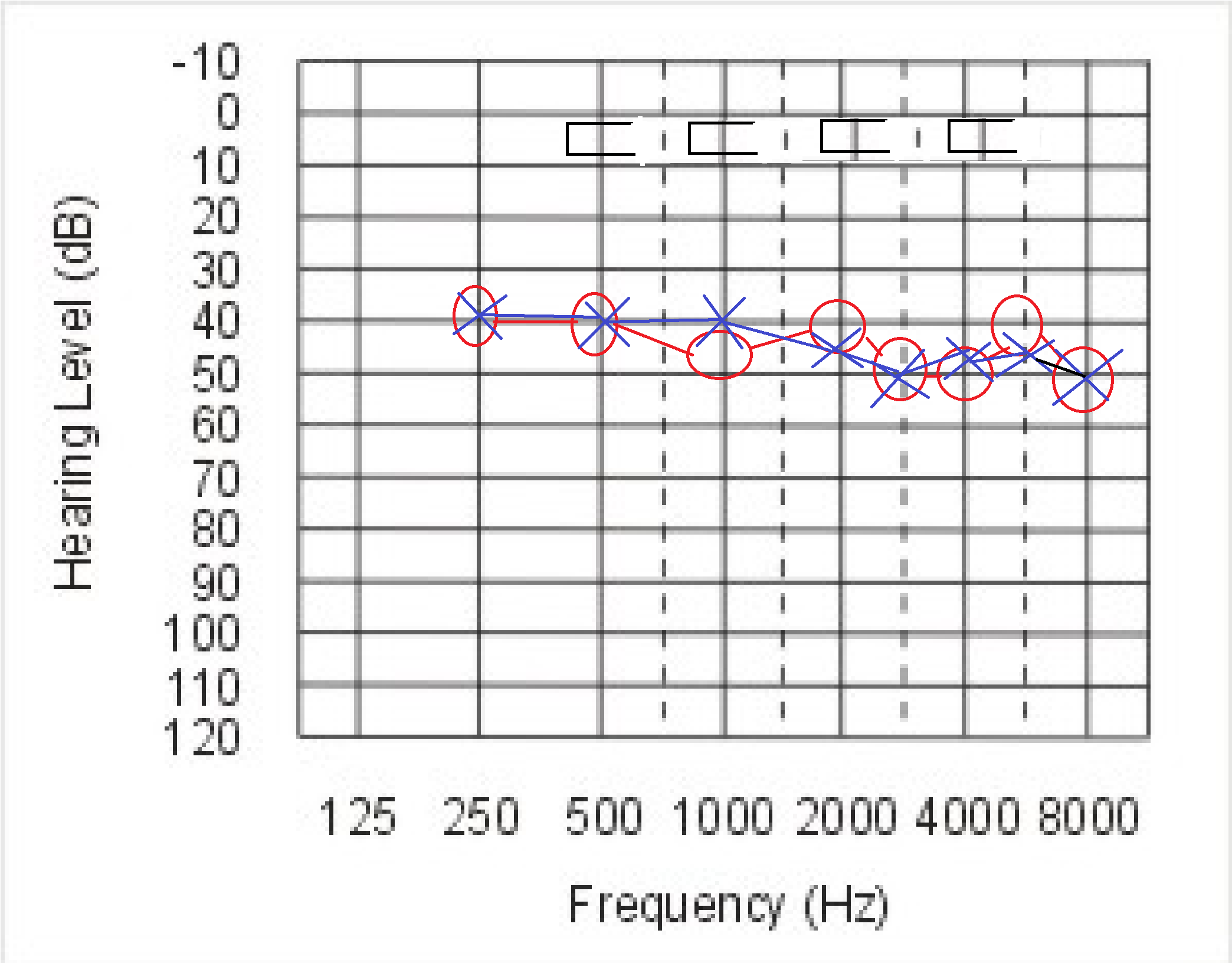 Image Result For Cochlear Frequency
